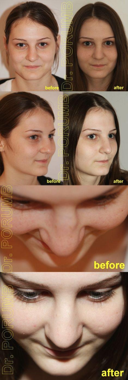 Premiera in Romania! Pacienta de 14 ani, nemultumita de aspectul estetic al nasu
