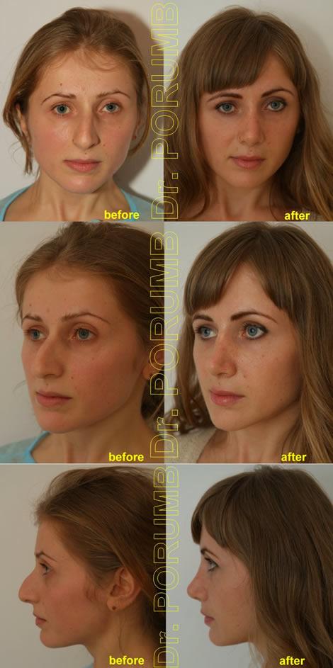 Pacienta de 22 ani, nemultumita de aspectul estetic al nasului, avand o fata si