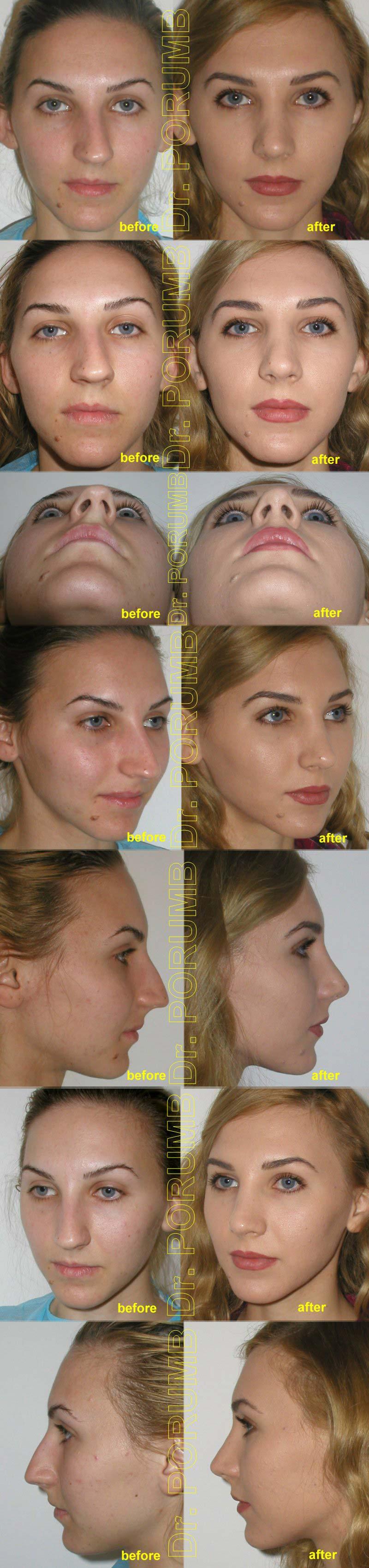 Pacienta de 24 ani, nemultumita de deviatia majora a nasului, de deviatia de sep