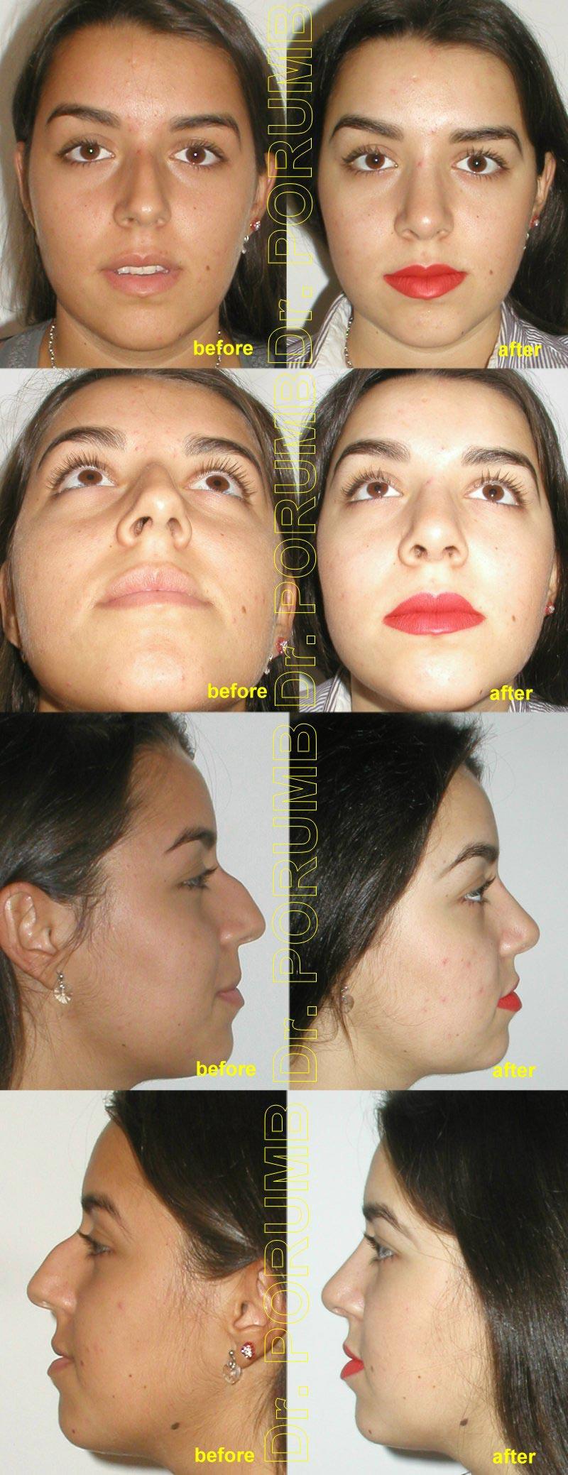 Pacienta de 23 ani, nemultumita de deviatia majora a nasului, de deviatia de sep