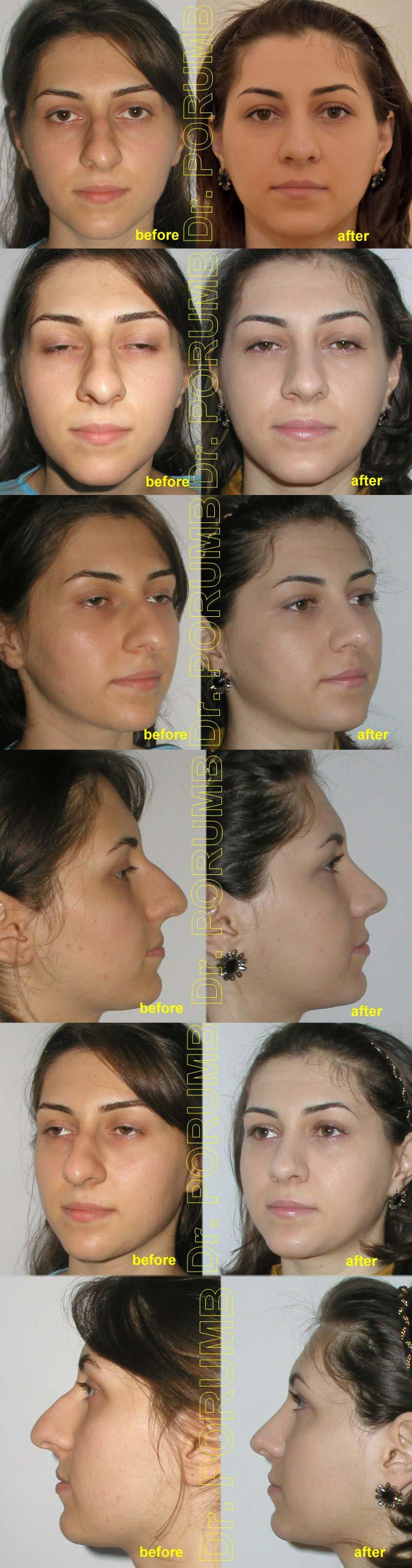 Pacienta de 22 ani, nemultumita de deviatia si marimea nasului, de deviatia de s