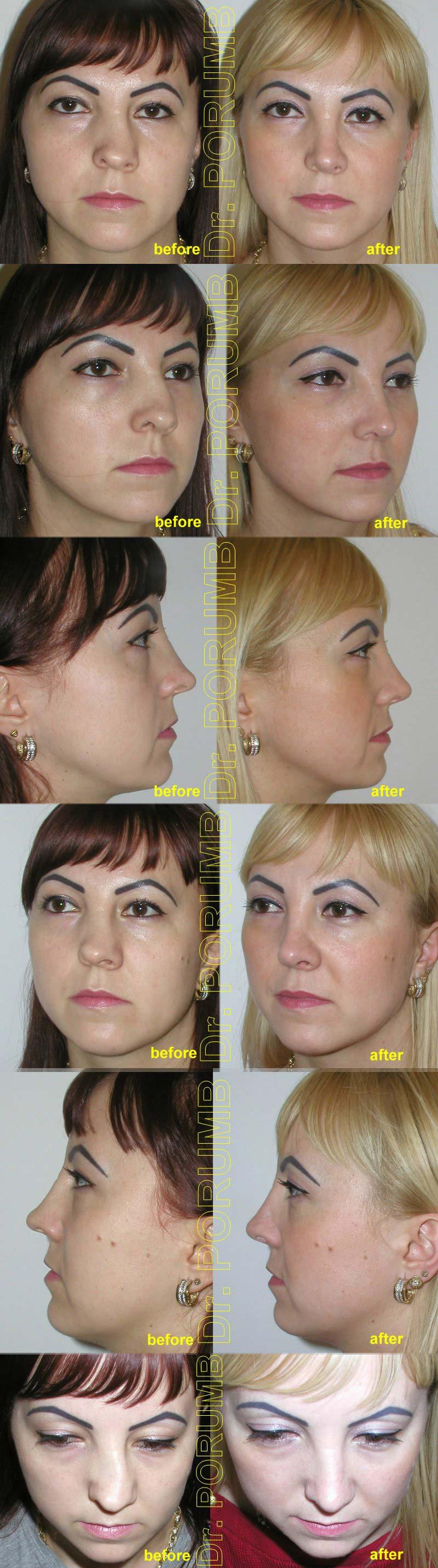 Pacienta de 29 ani, nemultumita de deviatia majora a nasului, de deviatia de sept si imposibilitatea respiratiei pe nas, doreste sa apeleze la chirurgie estetica de rinoplastie (operatie estetica nas), cu corectia deviatiei de sept si deviatiei de nas, modelare nas, subtierea nasului si indreptarea nasului