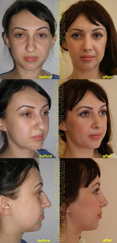 Pacienta de 29 ani, nemultumita de aspectul estetic al nasului, avand un varf bu