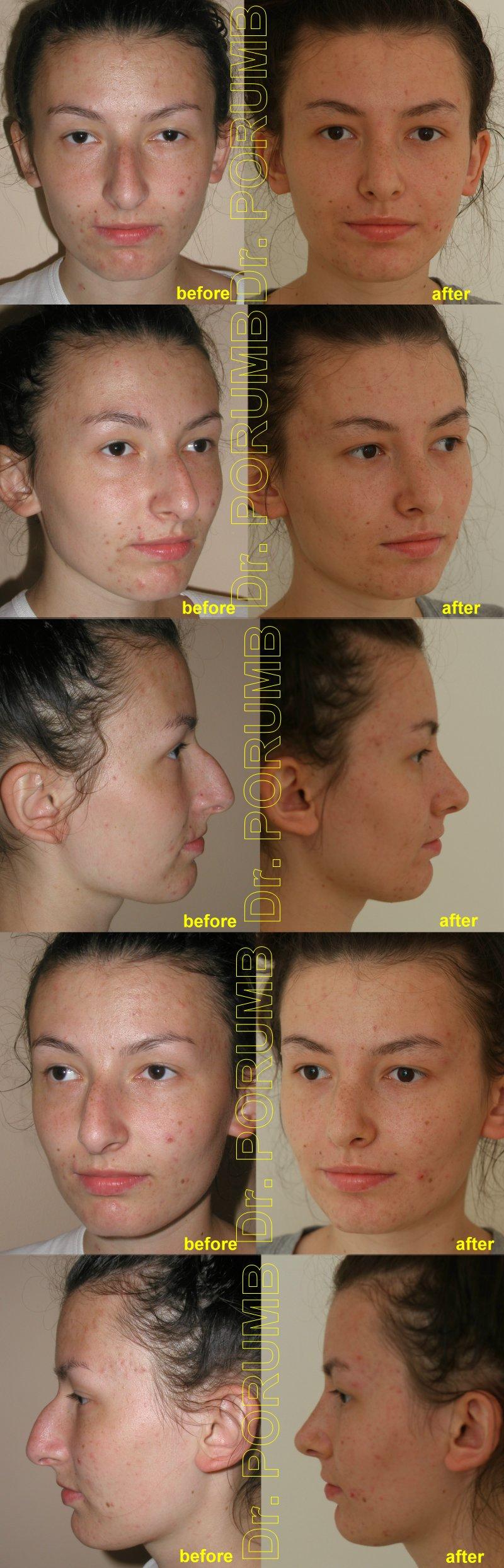 Pacienta de 19 ani, nemultumita de aspectul estetic al nasului, de marimea nasului, doreste sa apeleze la chirurgie estetica de rinoplastie (operatie estetica nas), cu corectia deviatiei de sept si deviatiei de nas, indepartarea cocoasei si micsorarea nasului, subtierea nasului si a bazei piramidei nazale si scurtarea nasului