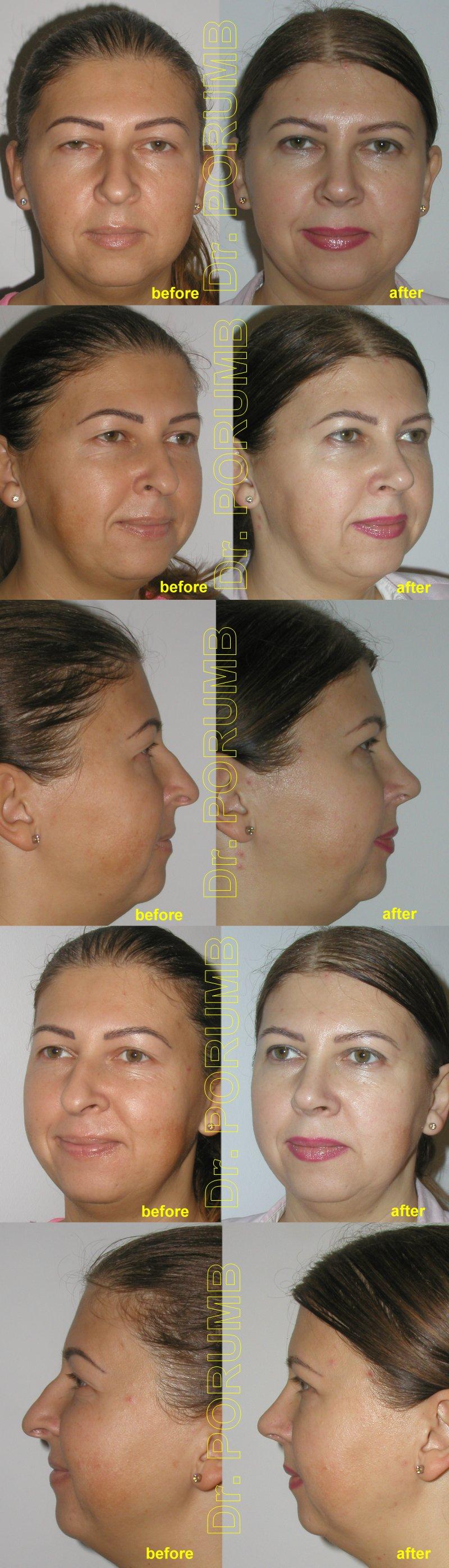 Pacienta de 40 ani, nemultumita de aspectul estetic al nasului, avand si deviatie de sept, cocoasa, un nas mai alungit si retractia marginii narilor doreste sa apeleze la chirurgie estetica de rinoplastie (operatie estetica la nas) cu simetrizarea nasului, corectia deviatiei de sept, scurtare nas, indepartare cocoasa, corectarea retractiei narilor, cu obtinerea unui nas mai armonios care sa se potriveasca mai bine fetei pacientei