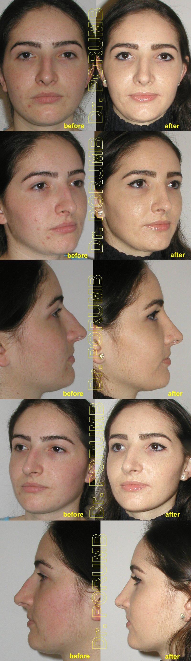 Pacienta de 24 ani, nemultumita de aspectul estetic al nasului, de marimea nasului, doreste sa apeleze la chirurgie estetica de rinoplastie (operatie estetica nas), cu corectia deviatiei de sept, indepartarea cocoasei si micsorarea nasului, subtierea nasului si a bazei piramidei nazale si scurtarea nasului, diminuarea proiectiei