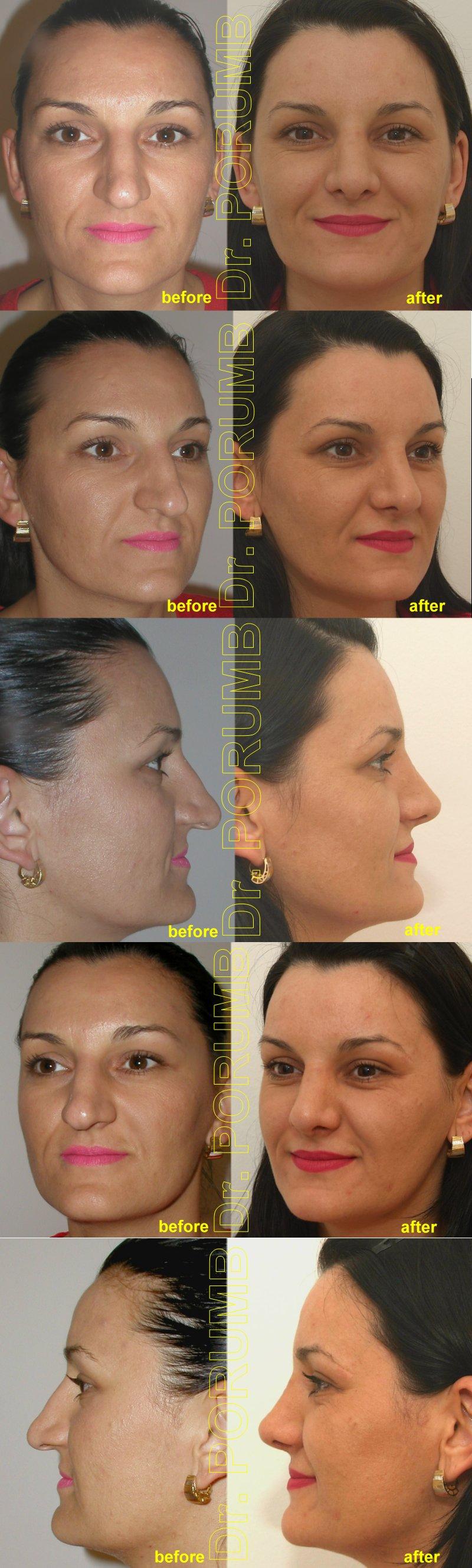 Pacienta de 33 ani, nemultumita de aspectul estetic al nasului, de marimea nasului, doreste sa apeleze la chirurgie estetica de rinoplastie (operatie estetica nas), cu corectia deviatiei de sept si deviatiei de nas, subtierea nasului, a varfului nasului si scurtarea nasului