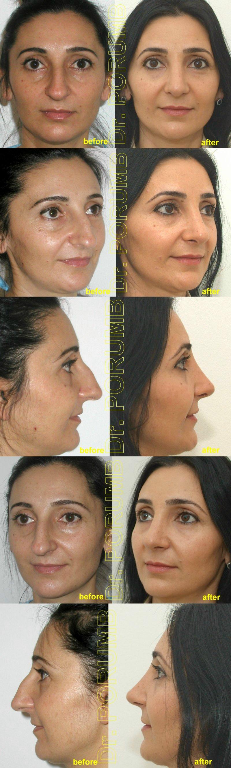 Pacienta de 38 ani, nemultumita de aspectul estetic al nasului, de marimea nasului, doreste sa apeleze la chirurgie estetica de rinoplastie (operatie estetica nas), cu corectia deviatiei de sept si deviatiei de nas, indepartarea cocoasei si micsorarea nasului, subtierea nasului si a bazei piramidei nazale si scurtarea si ridicarea nasului