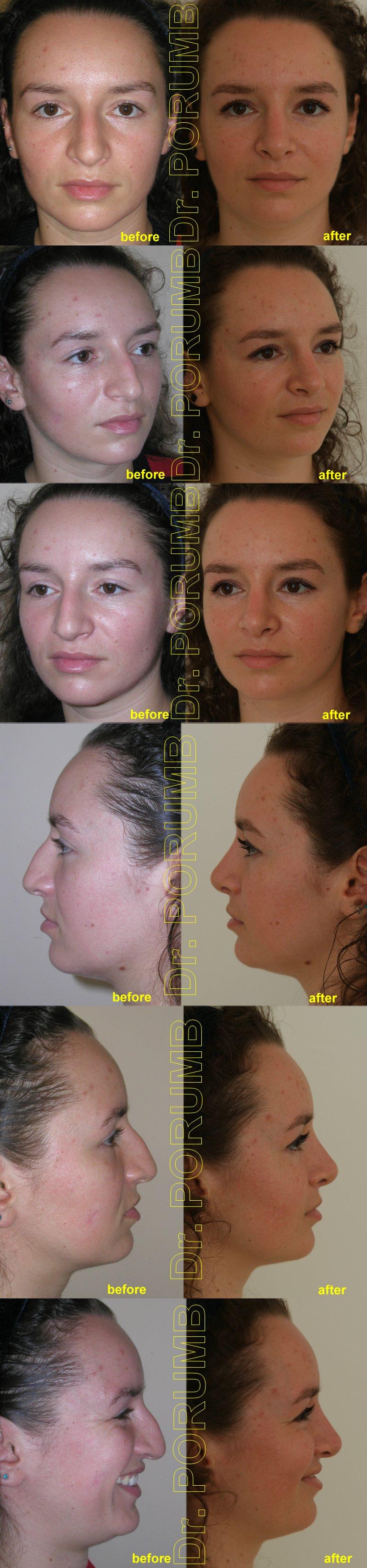 Pacienta de 27 ani, nemultumita de aspectul estetic al nasului, doreste sa apeleze la chirurgie estetica de rinoplastie (operatie estetica nas), cu corectia deviatiei de sept, indepartarea cocoasei si subtierea nasului si a bazei piramidei nazale