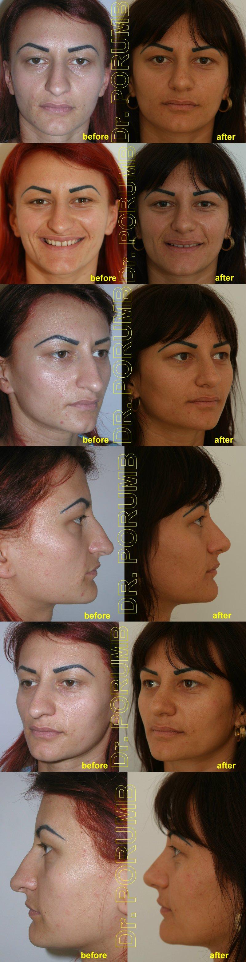 Pacienta de 22 ani, nemultumita de aspectul estetic al nasului, doreste sa apeleze la chirurgie estetica de rinoplastie (operatie estetica nas), cu corectia deviatiei de sept si deviatiei de nas, indepartarea cocoasei si subtierea nasului si a bazei piramidei nazale si scurtarea nasului