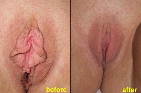 Pacienta de 33 ani, nemultumita de aspectul estetic si dimensiunea labiilor, avand un important discomfort psihologic, sexual si vestimentar, apeleaza la chirurgie estetica de labioplastie