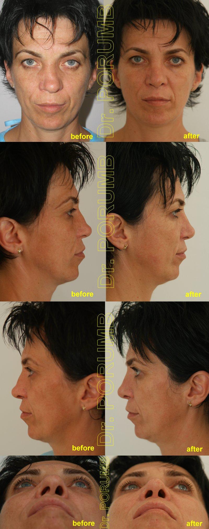 Pacienta in varsta de 37 de ani, prezentand un traumatism vechi nazal cu strambarea si infundarea nasului intr-o parte, o depresiune si cocoasa la nivelul nasului si deformarea majora a narii drepte, deviatie de sept cu dificultati respiratorii majore
