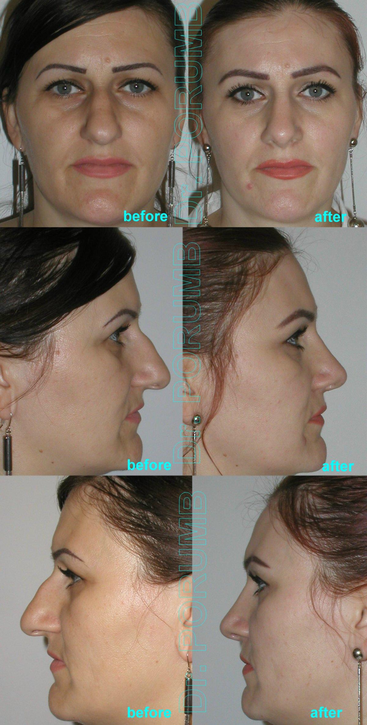 Pacienta de 36 ani, nemultumita de aspectul estetic al nasului, de marimea nasului, doreste sa apeleze la modelare nas, rinoplastie (operatie estetica nas), cu corectia deviatiei de sept, indepartarea cocoasei si micsorarea nasului, subtierea nasului si a varfului nasului, scurtarea nasului