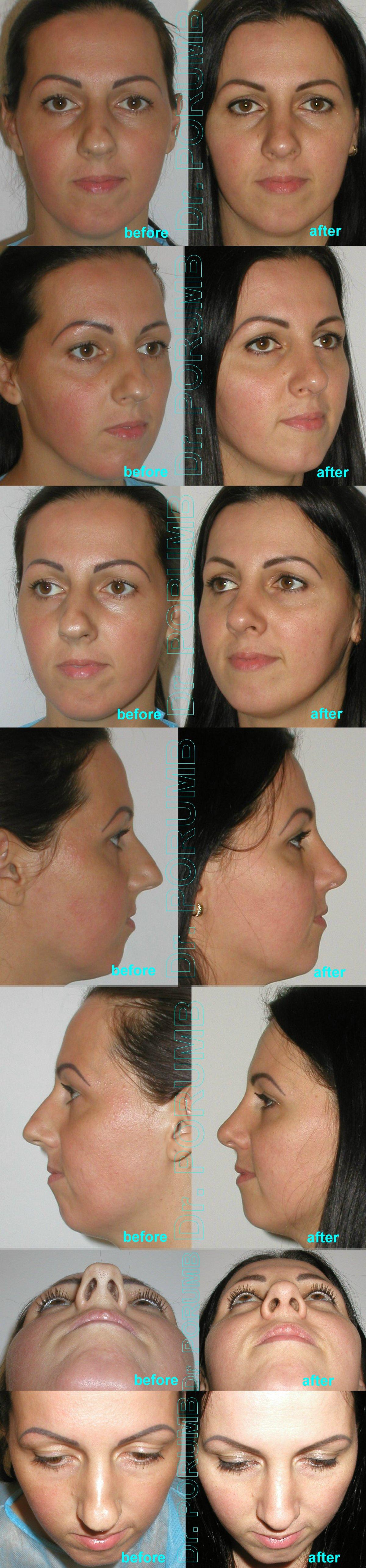 Pacienta de 34 ani, nemultumita de aspectul estetic al nasului, de marimea nasului, doreste sa apeleze la chirurgie de modelare nas, de rinoplastie si septoplastie (operatie estetica nas), cu corectia deviatiei de sept si deviatiei de nas, subtierea nasului, a varfului nasului si scurtarea nasului