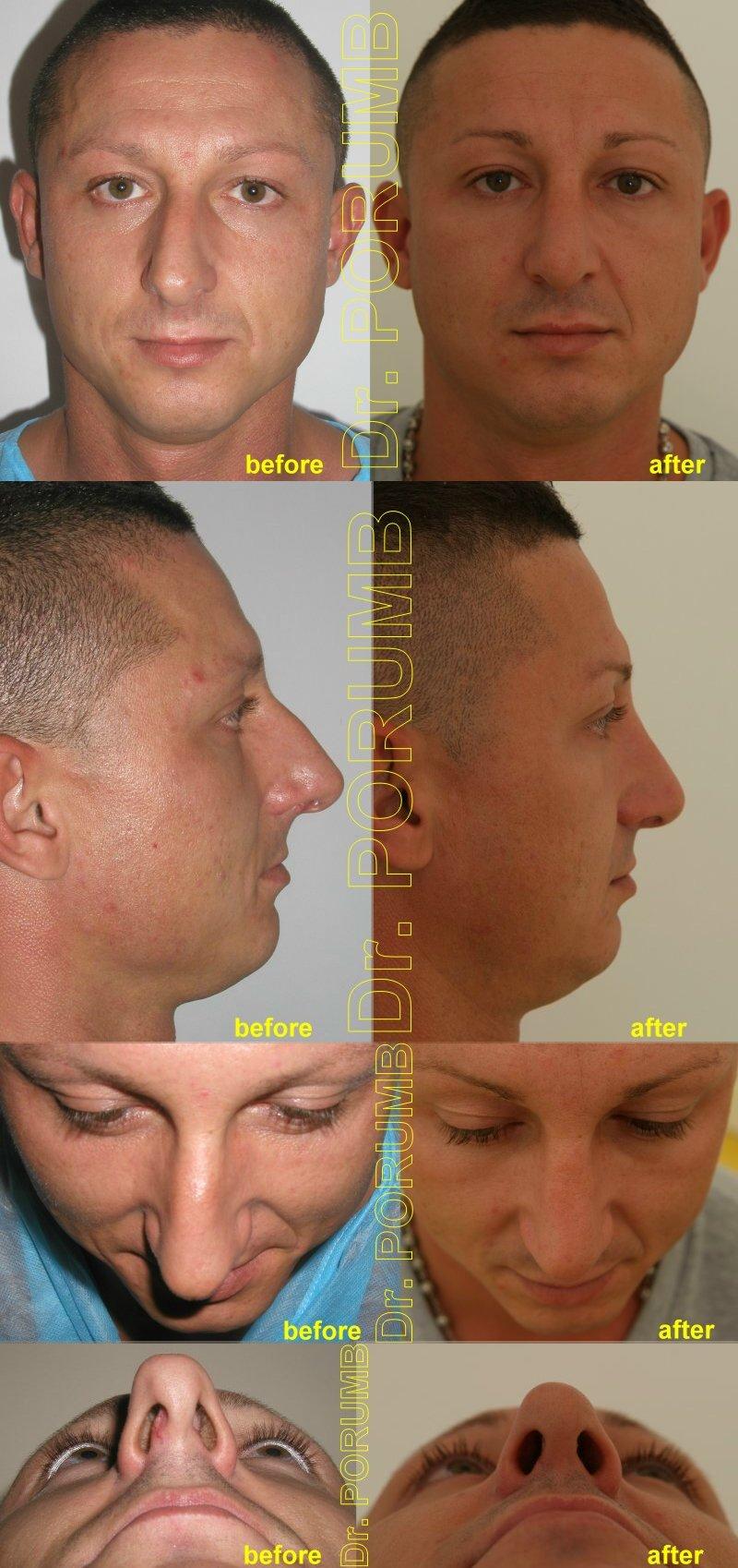 Pacient in varsta de 29 de ani, nemultumit de aspectul deviat, stramb si inclinat al nasului, precum si de marimea acestuia, de lungimea si proiectia in exces, dar si de dificultati respiratorii, doreste sa apeleze la o interventie de rinoplastie (modelare nas, operatie la nas) si septoplastie pentru corectia deviatiei de sept, micsorarea nasului, scurtarea nasului, diminuarea proiectiei varfului nasului si indreptarea nasului
