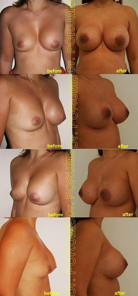 Pacienta de 34 ani.  Augmentare mamara secundara