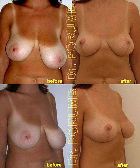 Ridicare sâni