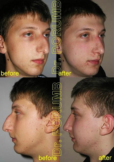 Pacient de 17 ani, nemultumit de aspectul estetic al nasului, avand si o deviatie de sept in urma unui accident anterior, doreste sa apeleze la chirurgie estetica de rinoplastie (operatie estetica nas) cu micsorare nas, indepartarea cocoasei, subtierea nasului si discreta ridicare si subtiere a nasului cu scurtarea in lungime, corectia deviatiei de sept