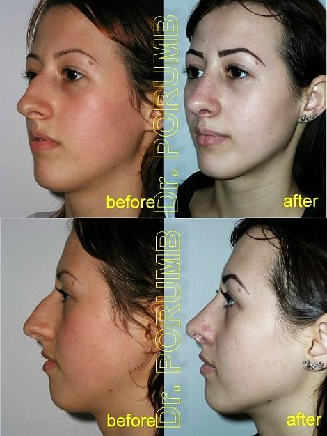 Pacienta de 19 ani, nemultumita de aspectul estetic al nasului, doreste sa apeleze la chirurgie estetica de rinoplastie (operatie estetica nas) cu micsorare nas, indepartarea cocoasei, subtierea nasului si varfului nasului