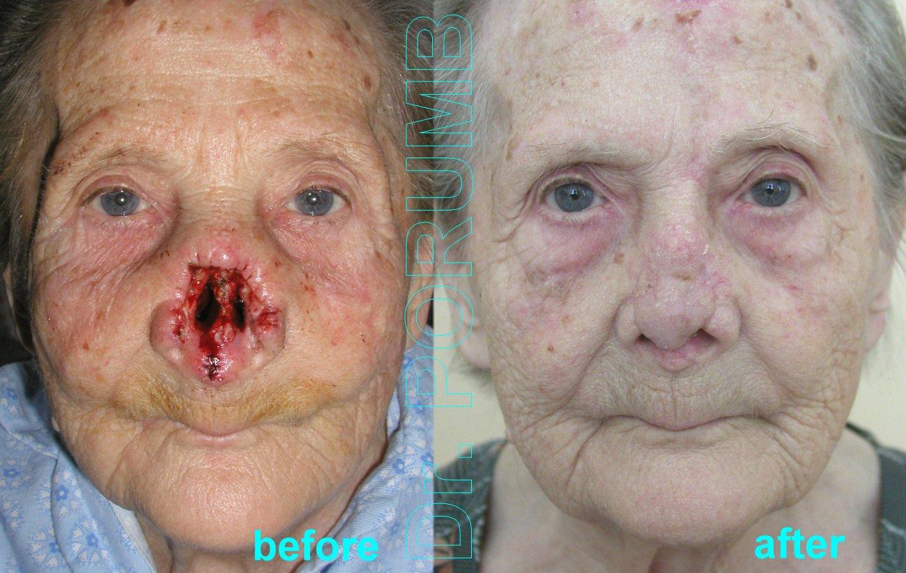Rinopoieza la pacienta in varsta de 84 ani, avand o formatiune tumorala maligna la nivelul nasului, se practica indepartarea acesteia in limite de siguranta oncologice cu indepartarea in cvasitotalitate a 2/3 inferioare ale nasului